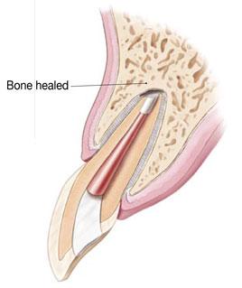 Apicoectomy3
